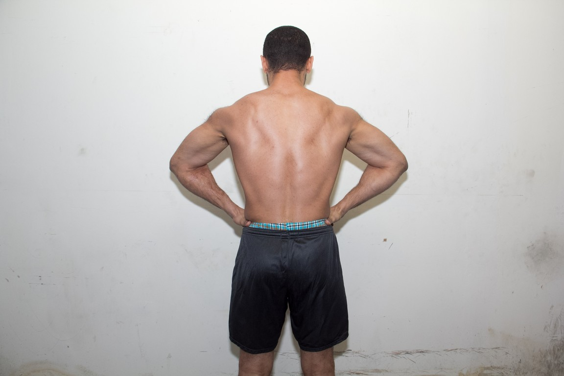 lat spread after 3 months