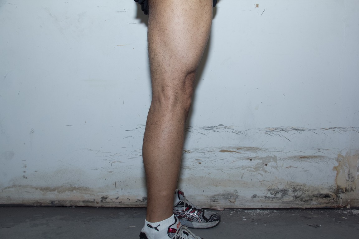 right leg after 7 months of lifting